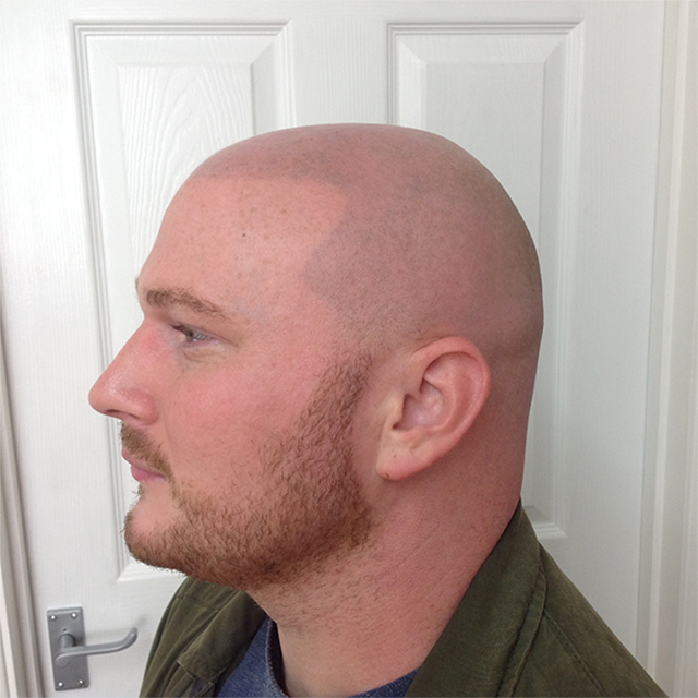 scalp micro pigmentation, hair tattoo - after