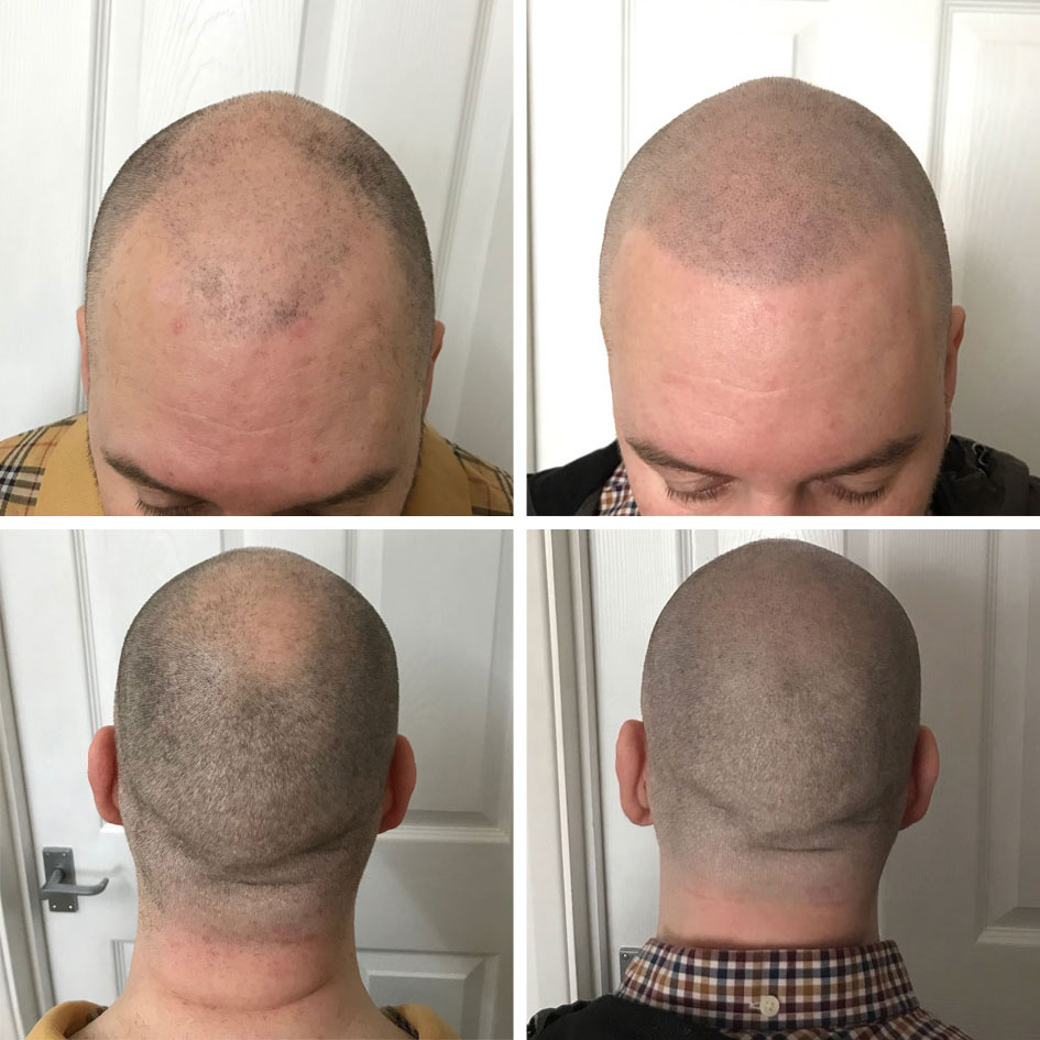 before and after images scalp micro pigmentation